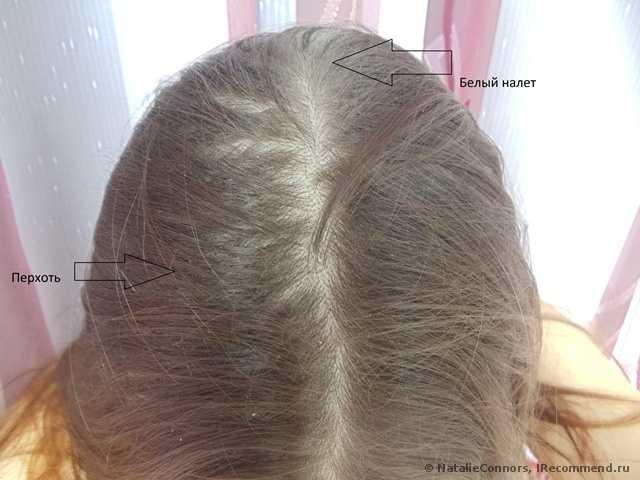 Что такое сухой шампунь? Как использовать? Где купить? Как долго волосы остаются чистыми? Все ответы в отзыве. Прошу прощение за такие неэстетичные фото (до и после) + секретик, если сухой шампунь оказался не идеальным