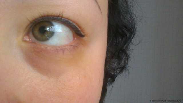 Мои синяки под глазами